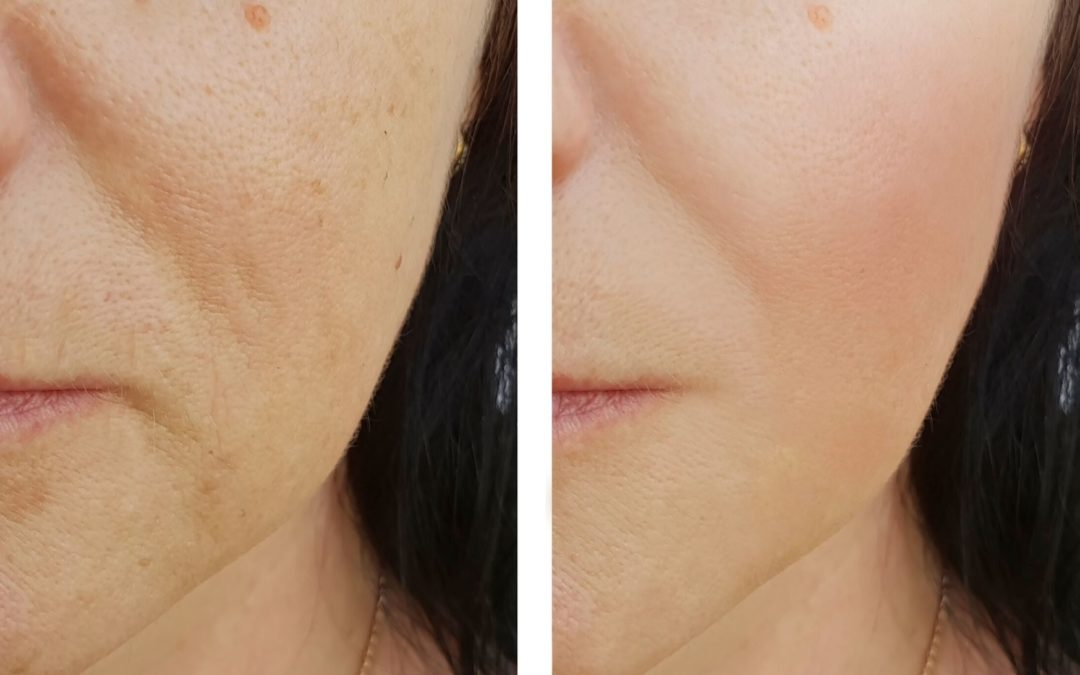 Are Dermal Fillers or Regenerative Fillers Right For You?
