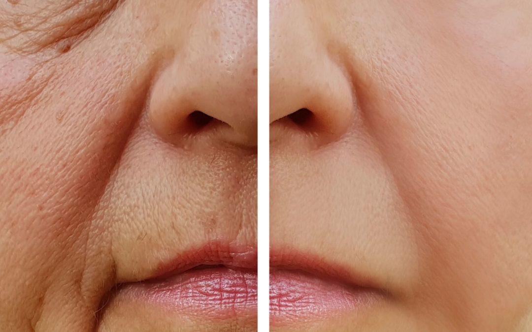 4 Ways to Reduce Wrinkles