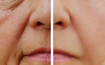 4 Ways to Reduce Wrinkles